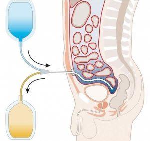 Перитонеална диализа